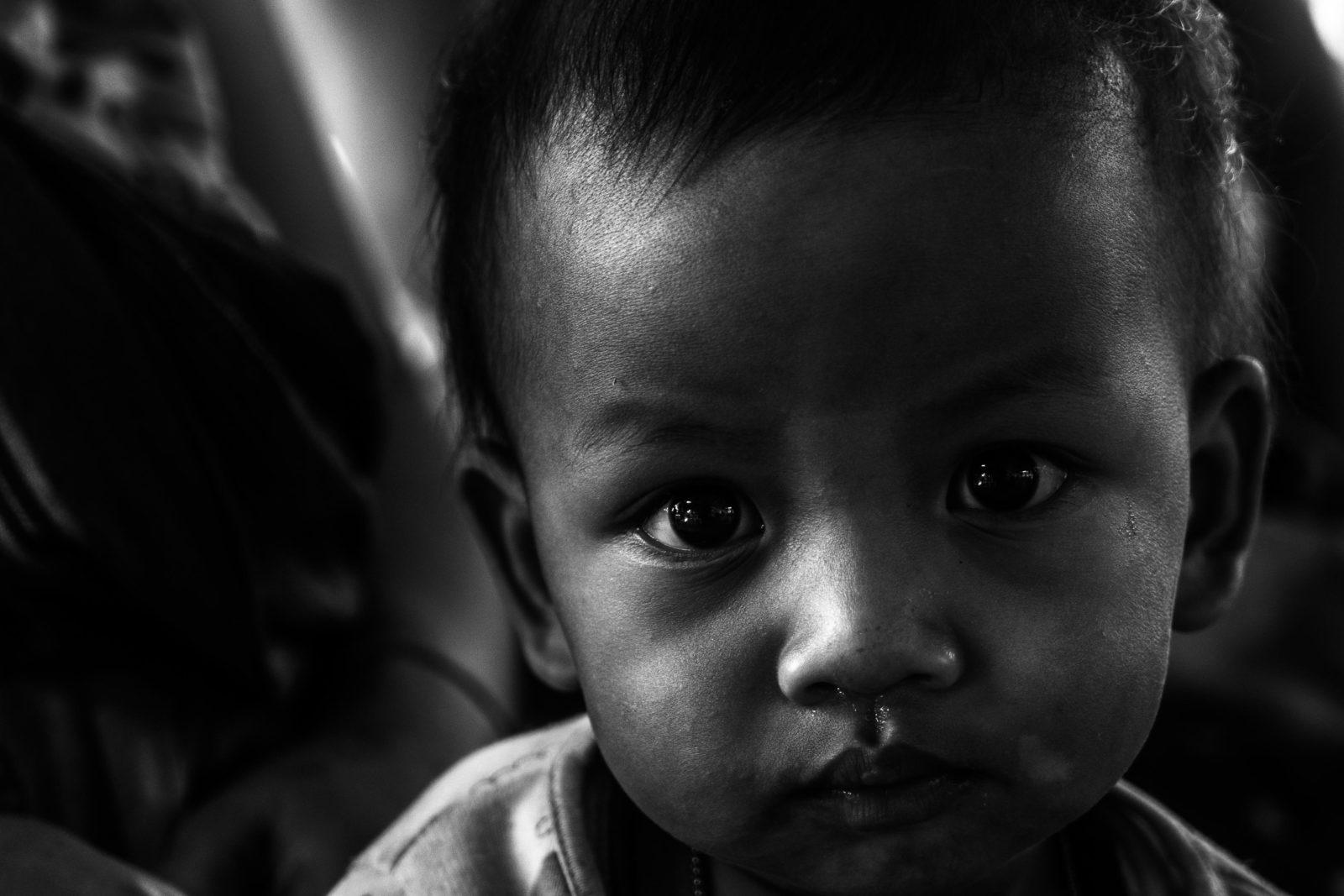 bambino karen in clinica